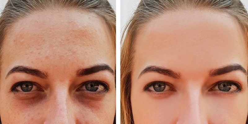 9 Ways to Get Rid From Dark Circles